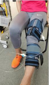 【膝の痛みでお悩みの患者さんがご来院】