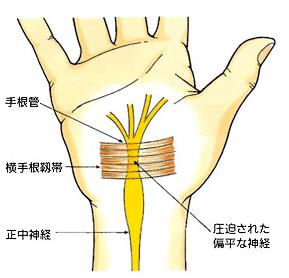 【手根管症候群】からくる手の痛みやしびれ
