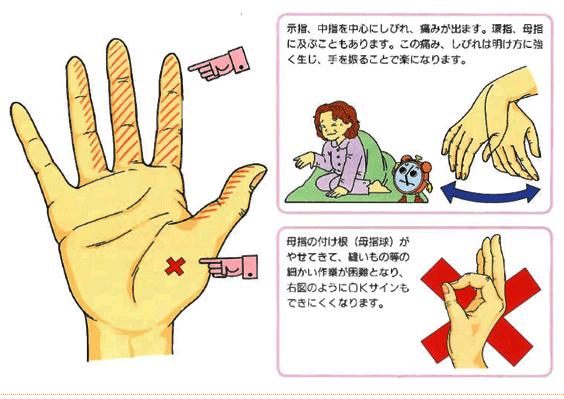 【手根管症候群】かもしれないと思ったら