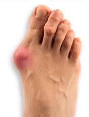 【外反母趾】は意外と身近な病気