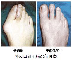 【外反母趾】の一般的な治療