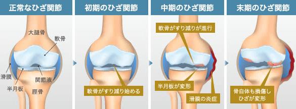 【変形性膝関節症】ってどんな病気?