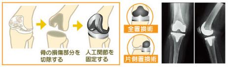 【変形性膝関節症】の一般的な診断と治療