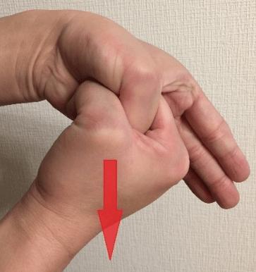 【ドケルバン腱鞘炎】の一般的な診断と治療