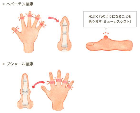 【へバーデン結節】の一般的な診断と治療