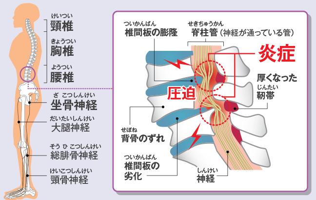 【脊柱管狭窄症】の原因