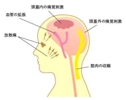 【頭痛】のタイプ